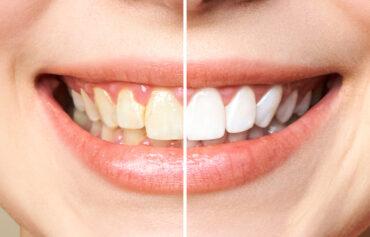 Igiene Dentale e sbiancamento